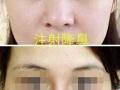 石家庄水光针买二送一玻尿酸丰额头瘦脸针溶脂针580元隆鼻线