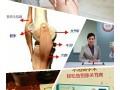 膝关节退变,骨质增生,滑膜炎髌骨软化,怎么办