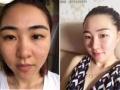 黑龙江省道外斑美拉淡化黑眼圈 眼袋