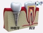 在合肥种植一颗牙齿要多少钱?