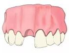 顺德种植牙多少钱一颗?