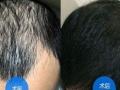 哈尔滨瑞丽植发针对无痕植发最高可享援助60费用