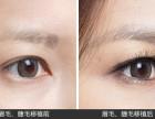 烟台洛神植发:睫毛种植要怎么样进行的呢