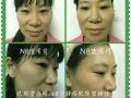 N8综合美体塑身仪瘦身仪加盟 美容院必备客源不断