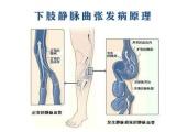 老爛腿的危害也就是在患肢的小腿內側