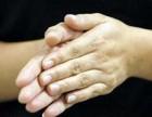 止汗收敛适合手汗症的止汗药533止汗膏喷雾剂疗效好