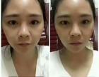 什么牌子的瘦脸面膜好用?常贴瘦脸面膜有副作用吗