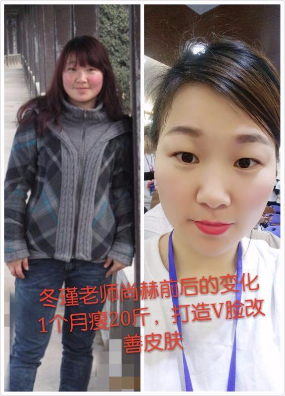 连云港尚赫减肥美容塑形理疗,爱心视力养护项目