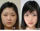 影响双眼皮效果的因素有哪些?