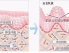 丹东玻尿酸塑形面部精致小脸注意事项