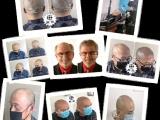 北京纹发 免费提供 男性脂溢性脱发治疗方法