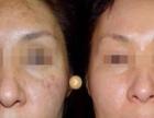潮州预防老年斑的方法有哪些?
