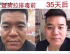 株洲株洲县斑美拉祛斑祛痘专营店