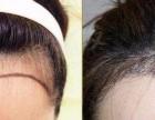 青岛植发发际线种植展现自然美观的你!