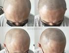 引起脱发的原因?