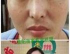 中国祛斑协会会长!苗刘存