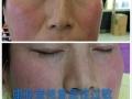 肤质美皮肤管理中心,祛痘,祛斑,祛痘印,保证5年不反弹