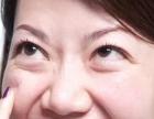 吸脂祛眼袋效果怎么样?好不好?