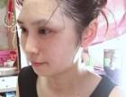 武汉恩吉娜整形医生段小兵的自体脂肪全脸填充术后一个月