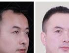 哈尔滨无痕植发手术是怎样收费的?