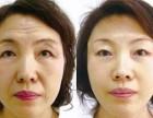 北京朝阳青年路韩式双眼皮效果好有效果服务好