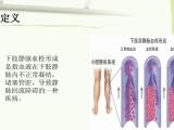 看一下靜脈血栓引起下肢潰瘍的治療方法