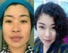 默美国际北京贵之颜医疗美容加盟 美容SPA/美发