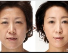 德州韩绣 面部提升的胶原蛋白线有几种效果怎样