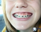 合肥儿童矫正牙齿多少钱?