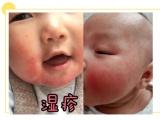 如何区分湿疹or热疹 宝宝湿疹护理比治疗更重要