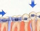 种植牙齿要注意哪些事项?