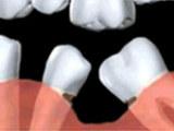 牙齿种植精益求精,铸造品质的典范
