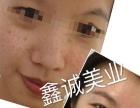 鑫诚美业祛斑当场干净专利技术全国**加盟