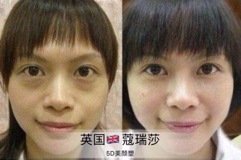 上海蔻瑞莎无针雾化真的可以一分钟祛眼袋吗?能维持多久