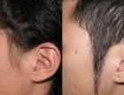 烟台植发:哪些鬓角能通过医院种植
