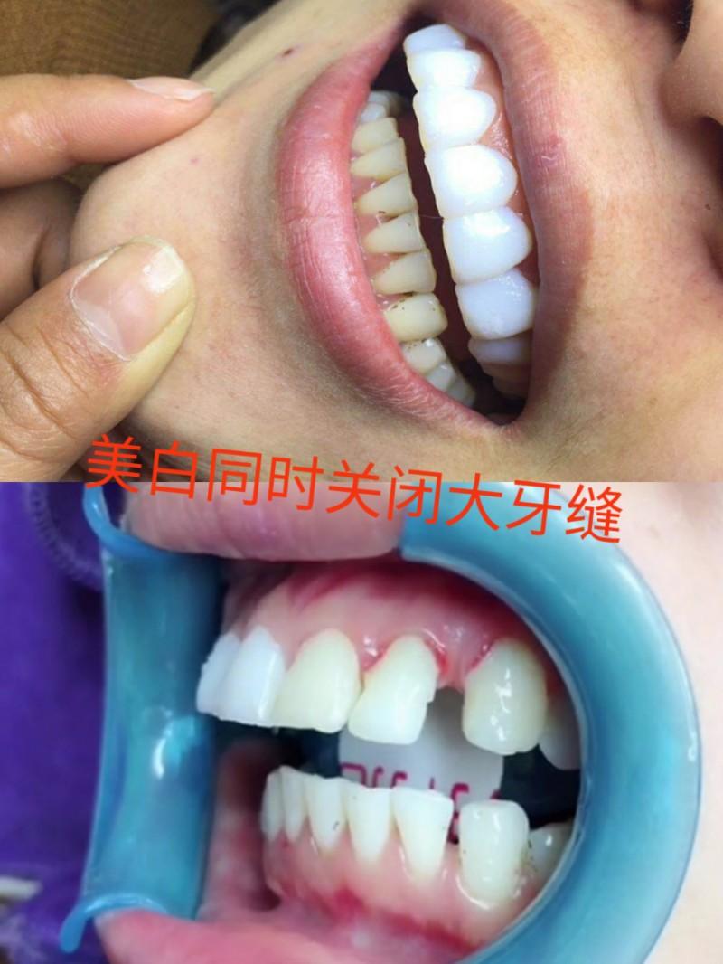 纳米小白牙伤害牙齿吗 是什么原理 淄博私人订制无痛逆龄美牙