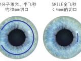 专业的全飞秒激光近视手术制造商,康晶眼科