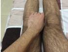 教你如何永久去除腿毛淡化腿毛的方法