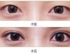 开发区吸雕双眼皮手术会留疤吗