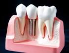 合肥做种植牙多少钱,种植牙的价格为什么这么贵