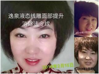 广州逸泉生物科技_广东专业的逸泉液态线雕【推荐】