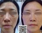 福州蔻瑞莎5D量子五官塑抗衰去皱去眼袋招商加盟