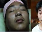 广州从化斑美拉脸部排毒 祛斑 消除痘印怎么样?