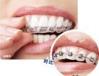 上海牙科医院牙齿正畸会让您绽放自信笑容