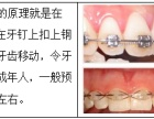 西安圣贝牙齿矫正步骤有哪些