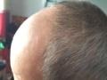 自然莎生发防脱发洗发水