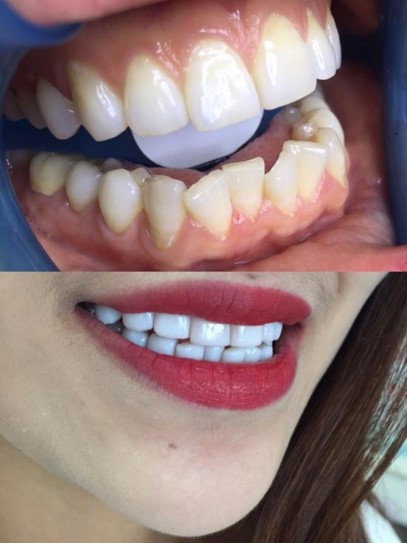 拼颜值的时代别让大黄牙拖了后腿 鹰潭私人订制无痛逆龄美牙
