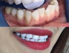 拼颜值的时代别让大黄牙拖了后腿 日照私人订制无痛逆龄美牙