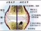 膝关节为什么会产生积液