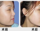 上海下颌角修复手术黄大勇院长